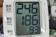 【画像】やばすぎる血圧の人間が見つかるwwwwwww